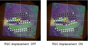 RGC displacement