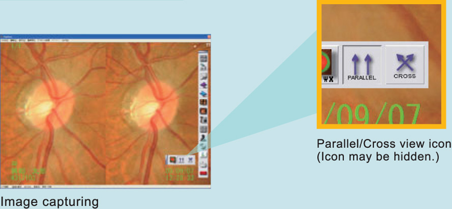 Retinal observation on 3D images
