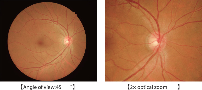 Nonmyd AF Retinal Camera Features